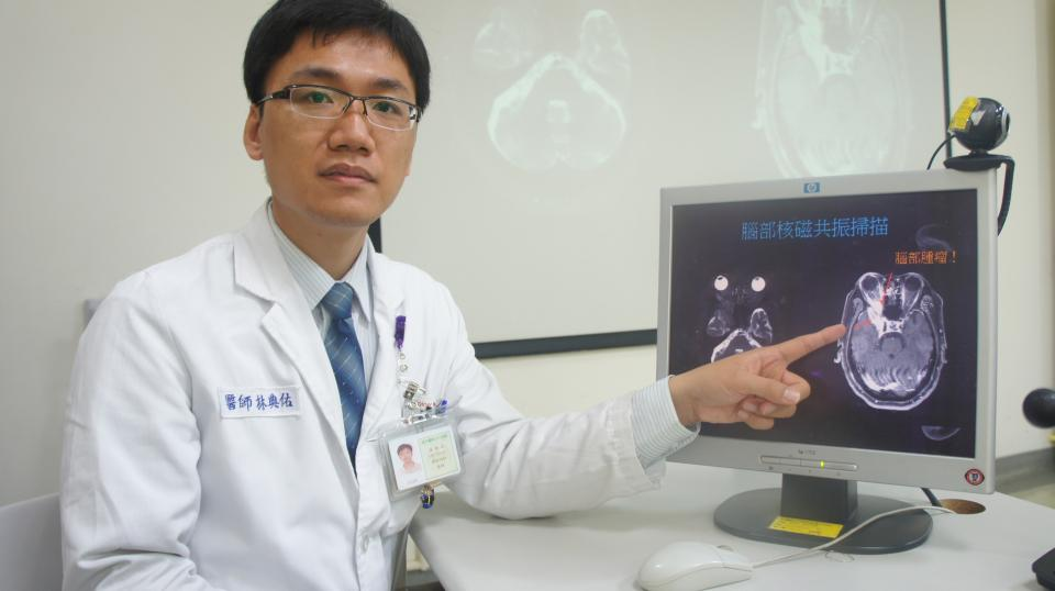 慢性頭痛20年 腦中竟藏腫瘤