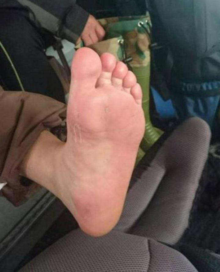 求援的登山隊員中有人當天腳起水泡破皮,要求直升機出動救援。記者賴香珊/翻攝