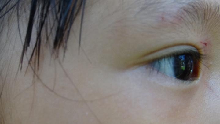 女童眼部上方仍存明顯抓痕。有記者謝進盛/攝影