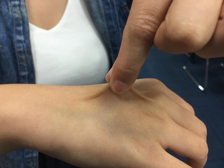 若輕捏手背皮膚後放開不會立即回彈,代表身體缺水。記者江慧珺/攝影