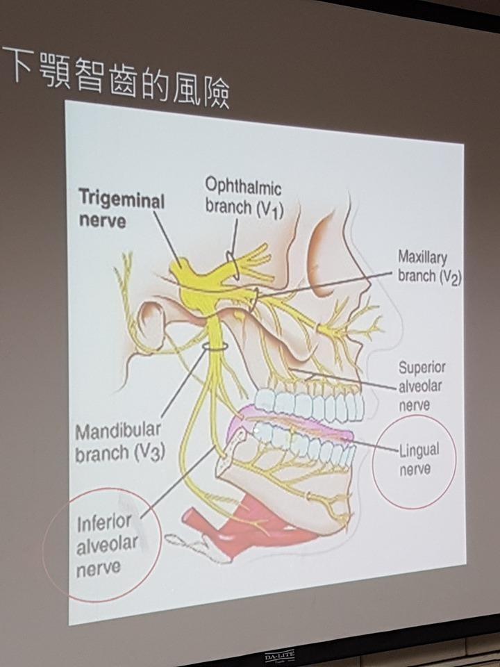 拔除智齒時要特別注意牙齒上下方的神經。 記者修瑞瑩/攝影