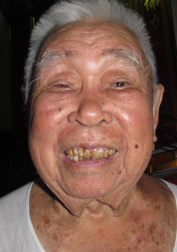 南投縣政府推出老人假牙補助,設籍在南投縣的70歲以上老人,都可以提出申請。圖/本報資料照片