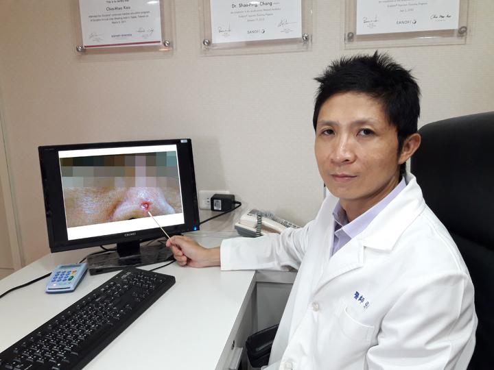 皮膚科醫師張少平指出,鼻頭上的痘痘莫輕忽,小心是基底細胞癌。圖/張少平提供