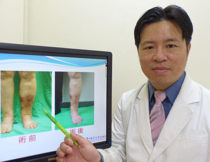 醫師林子鈞說明,劉姓老婦人左小腿經治療後,原本腫漲(左)的情況獲改善(右)。記者趙容萱/攝影