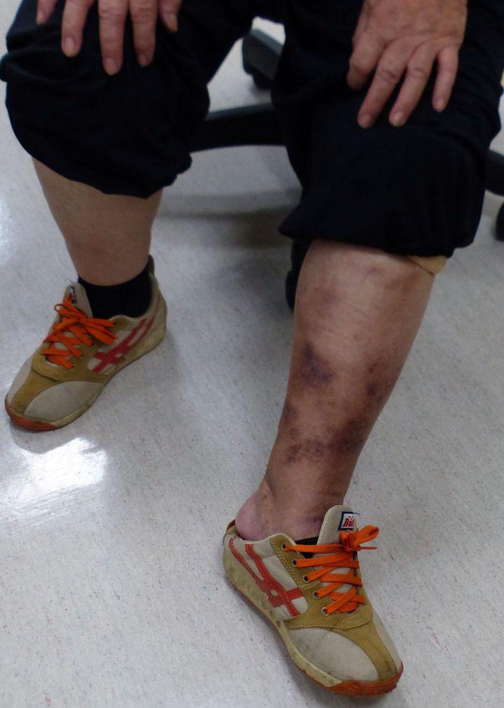 劉姓老婦人左小腿經治療後,靜脈曲張腫漲、發癢情況獲改善。記者趙容萱/攝影