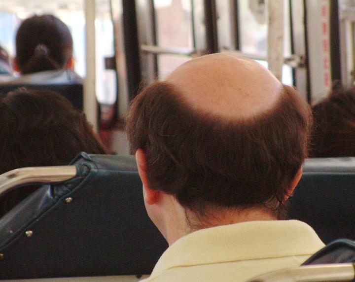 現在人壓力大又常忽略毛囊的清潔導致落髮形成禿頭。圖/報系資料照