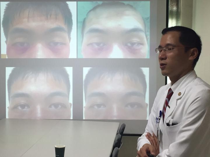 員山北榮整形外科醫師李秉侖,分享先天性眼瞼下垂病患案例。記者張芮瑜/翻攝