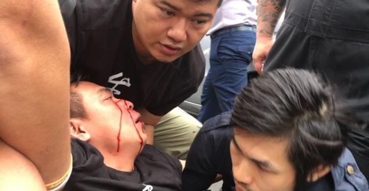 彰化縣政府今天舉辦可愛動物教育園區工程說明會,散會後演成流血衝突,動保人士被打傷流血。記者何炯榮/翻攝