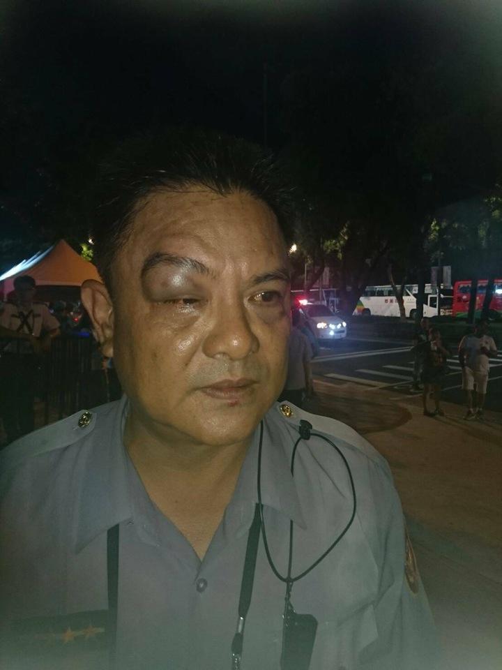 巡佐劉金銓處理陳抗時受傷,眼部嚴重腫脹。圖/記者李承穎翻攝