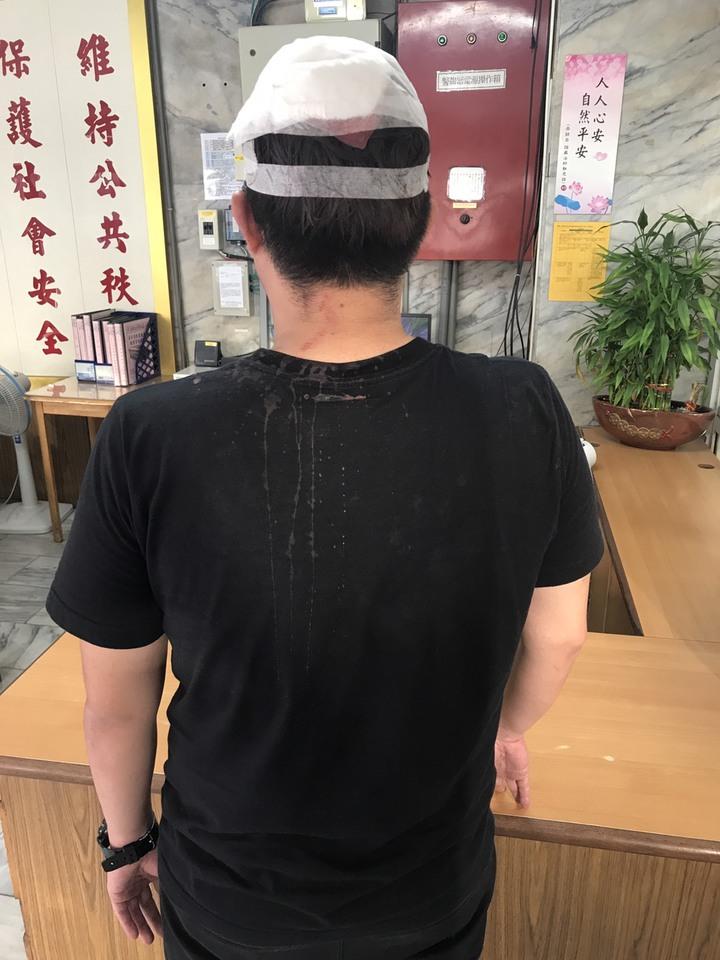 車男頭部被打傷。記者劉星君/翻攝