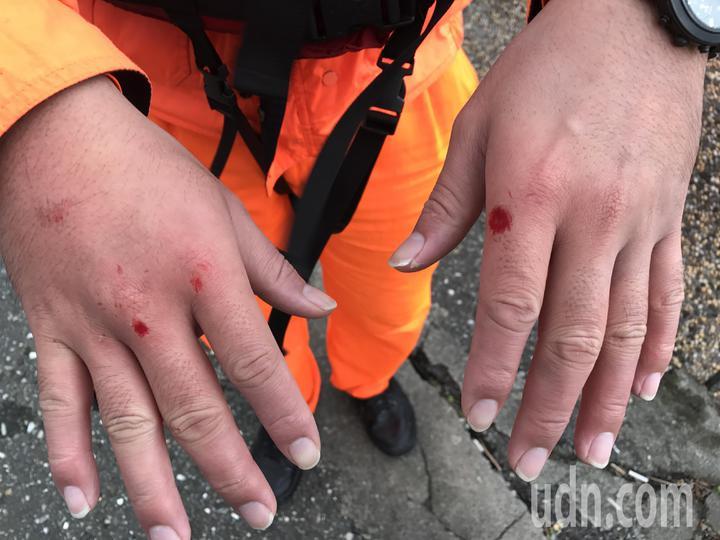 南雅安檢所所長林昱成協助救5人上岸,雙手受傷。記者吳淑君/攝影