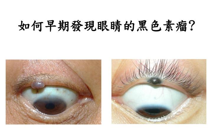 長在眼瞼上的黑色素瘤(右)和痣(左),因外觀難分辨,需由有經驗的專業醫師才分辨得出來。 圖/蔡傑智醫師提供