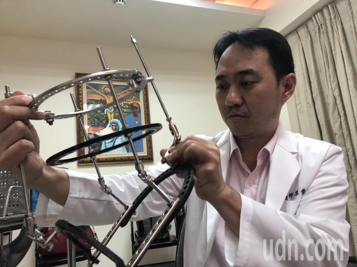 嘉基骨科醫師陳俊和專研畸形矯正手術,術後透過環形固定器輔助,把變形的腳拉正,已治療不少案例。記者王慧瑛/攝影