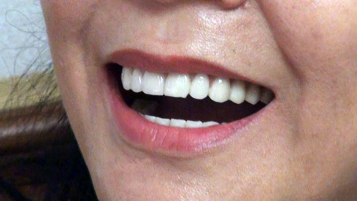 受缺牙問題困擾的吳小姐接受全口快速植牙後,恢復自信笑容。記者王昭月/攝影