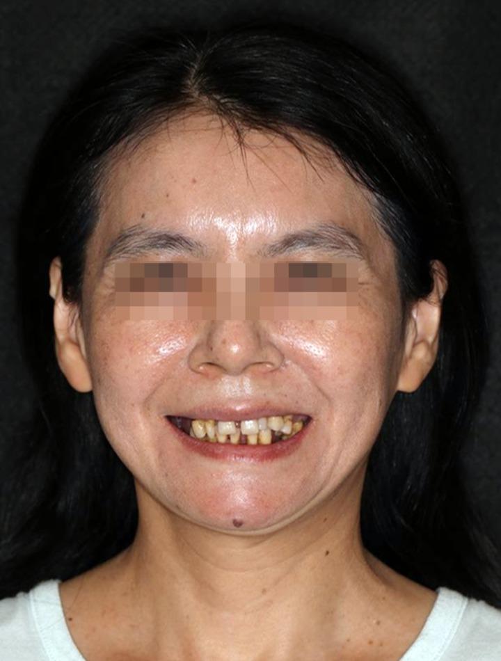 罹患牙周病的吳小姐,十多年前產後牙齒開始崩壞。圖/高雄長庚擔供