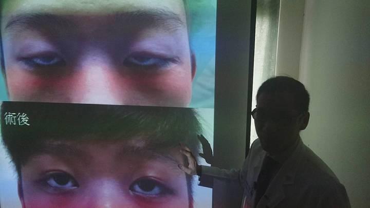 宜蘭一名青年出生即因眼瞼下垂,眼睛睜不開,20年來,有如半夢半醒,臺北榮總蘇澳暨員山分院看整形外科醫師李秉侖割腿取筋,為他開眼,還加送雙眼皮,今天說明改善情況,上圖為手術前,下圖為手術後。記者羅建旺/攝影