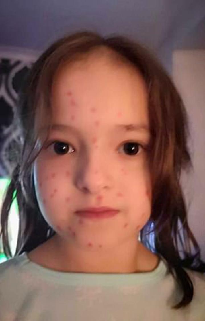 英國6歲女童莉莉史庫利(Lily Schooley),因為不想要上學,居然模仿罹患水痘的同學,拿紅色簽字筆在身上畫出像「疹子」的紅點,當下被爸媽識破,逃學沒成功,結果「水痘」也洗不掉,還因此嚇得同學4天不敢靠近她,讓女童超崩潰。圖片翻攝《每日郵報》