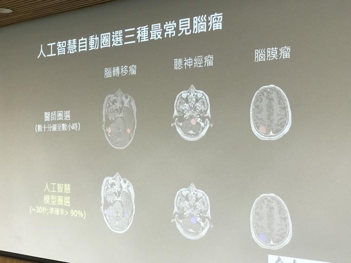 台大腫瘤醫學部主治醫師許峯銘表示,該技術目前已可應用於腦轉移瘤、腦膜瘤以及聽神經瘤三種最常見的腦瘤。記者簡浩正/攝影