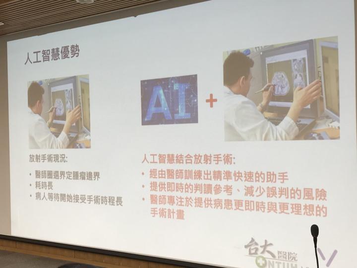台大醫院與醫隼智慧共同合作,整合人工智慧系統於腦瘤放射手術的治療流程。記者簡浩正/攝影