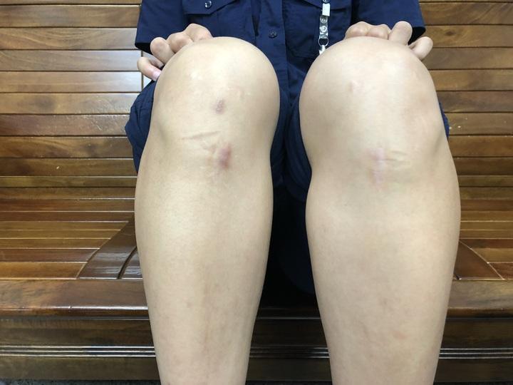 台中市第四警分局南屯所女警王翊馨熱愛跆拳道,左右腳的十字韌帶都斷過,膝蓋都有開刀的痕跡。記者陳宏睿/攝影