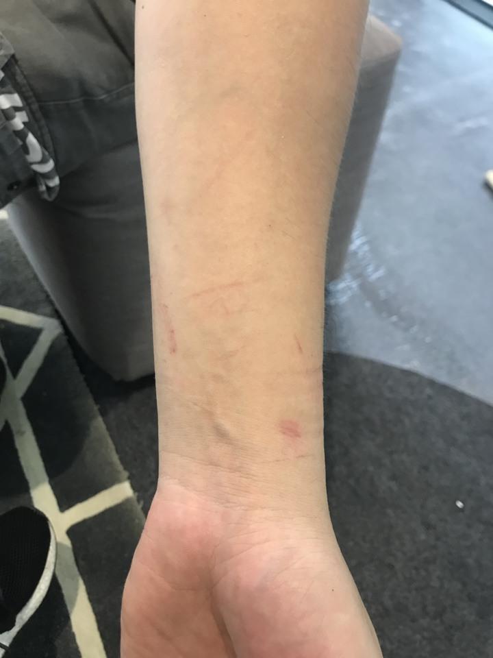 被害男子遭警方壓制,上銬後在手腕留下傷痕。圖/被害當事人提供